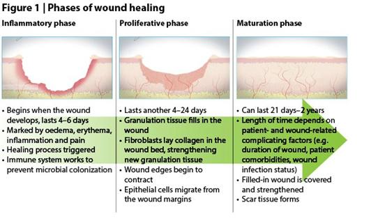 wound healing 1
