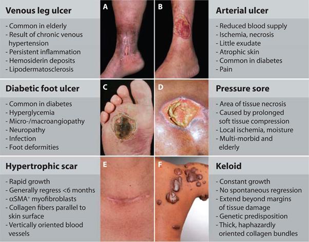 wound healing 3
