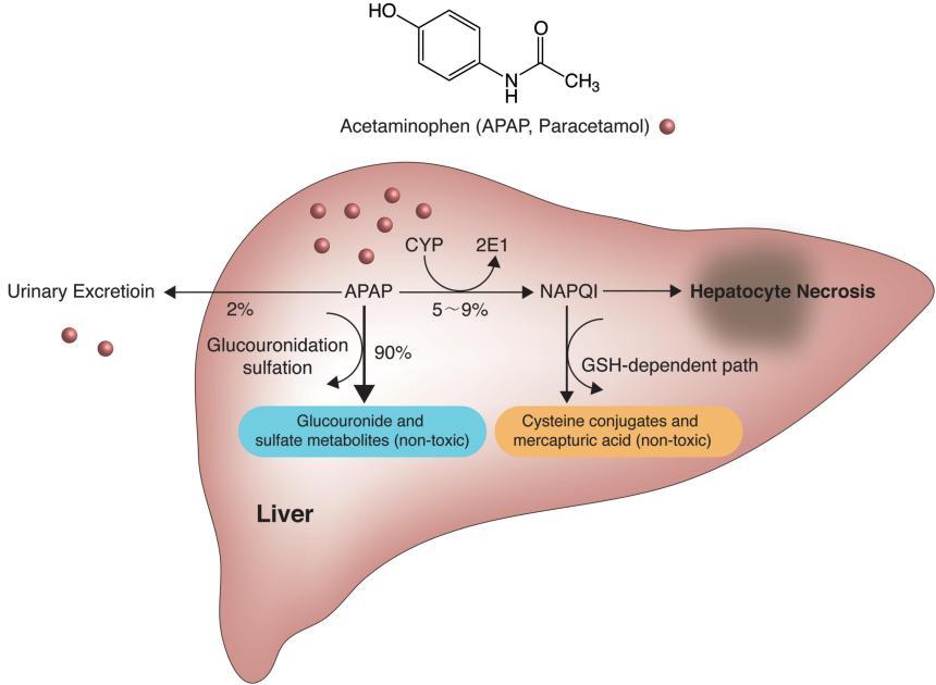 paracetamol toxicity